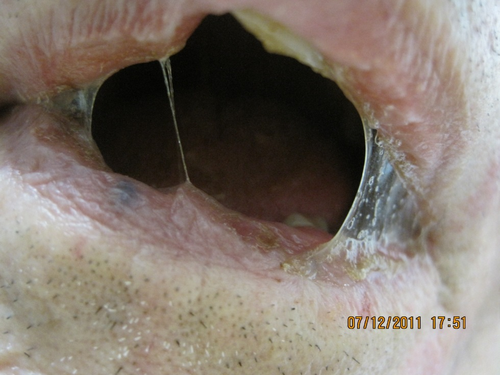 selbstbefriedigung mädchen forum prostata vibrator